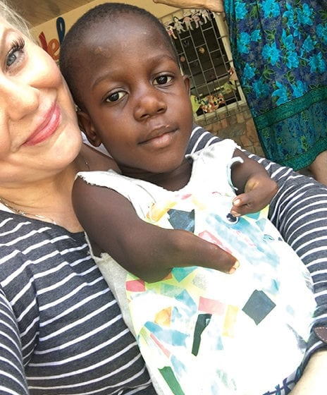 Childhood Experience Gives Amputee A Passion For Helping Children