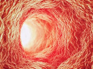 New Catheter Lets Doctors See Inside Arteries