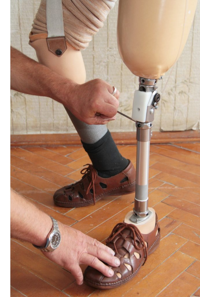 "COVID-19 Q&A: Are prosthetist practices ""essential businesses""?"