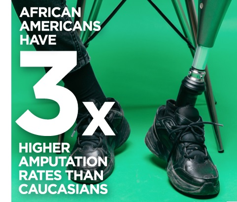 Amputation rates among African Americans are 3 times higher than the general population