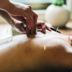 Acupuncture Before Surgery Reduces Pain and Opioid Use