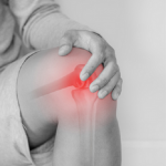 Amputees and Arthritis: Study Yields New Insights